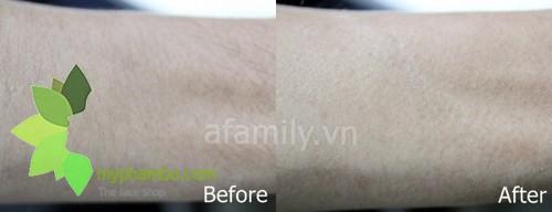 Mieng dan tay long CK Absolute hair remover waxed paper (7)