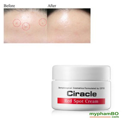 Kem-tri-seo-do-mun-trung-ca-de-lai--Ciracle-Red-Spot-Cream-(4)11