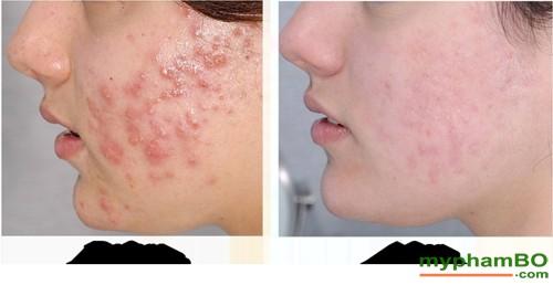 kem-tri-mun-shiseido-nhat-ban-15gr-11