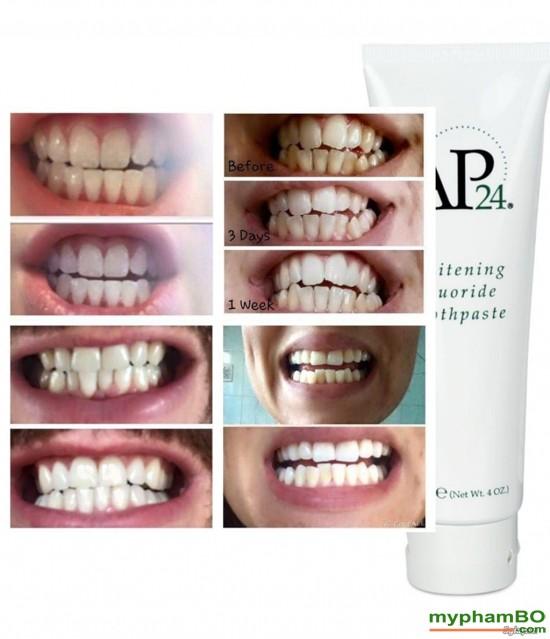 Kem donh rang trng song AP24 Whiteing Flouride Toothpaste (1)