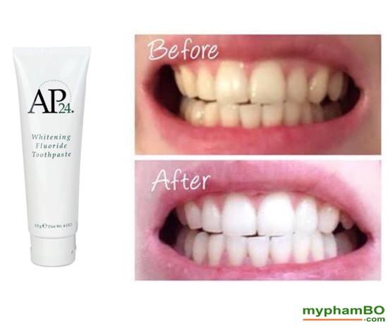 Kem donh rang trng song AP24 Whiteing Flouride Toothpaste (1)(1)
