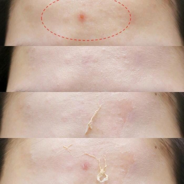 Gel va da che mun, seo than thanh Not4U Real Skin Patch - Han quoc (10)