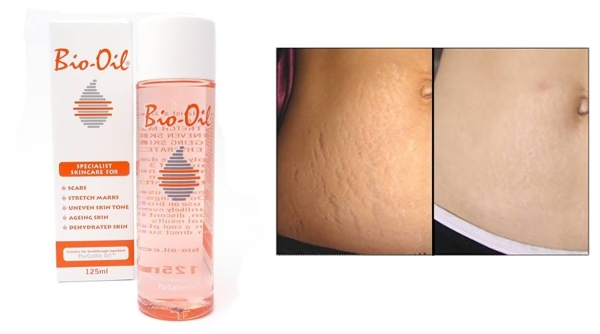 Tinh dau tri ran da Bio Oil 125ml (8)