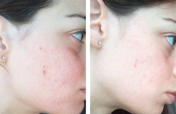 Nuoc hoa hong Meishoku Bigansui Medicated Skin Lotion tri mun (1)