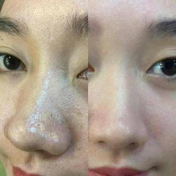 Tinh Chat U mun Ohio Hangul Han Quoc (4)