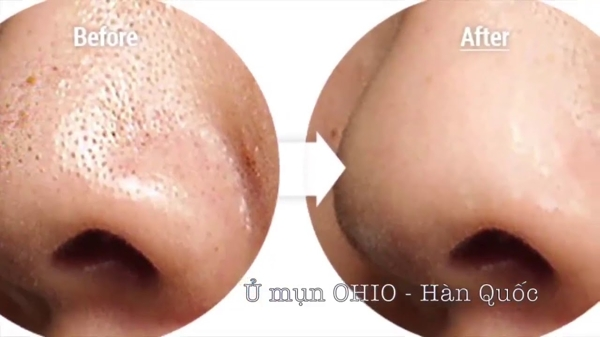 Tinh Chat U mun Ohio Hangul Han Quoc (5)