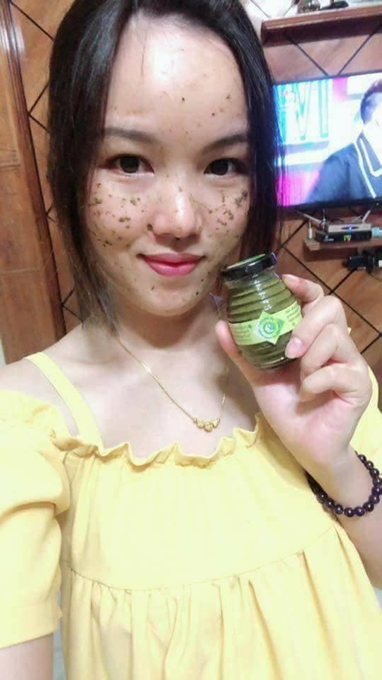 Kem Tri Nam Sac Moc Lam Tri Mun Tan Nhang Hieu Qua (5)