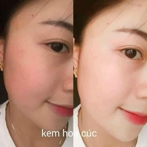 Kem Hoa Cuc Pau Jen Pai Tri nam, duong trang da (10)