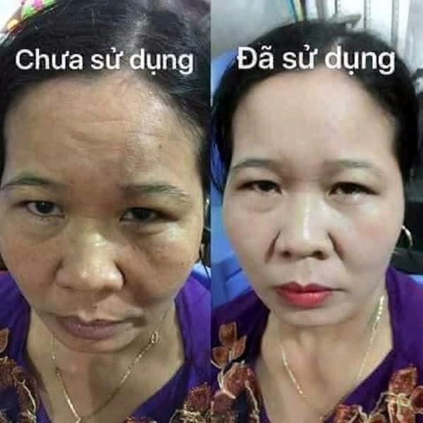 set kem tri nam tan nhang clobetamil g thai lan (4)